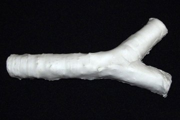 A man-made trachea, constructed of plastic and ready for seeding with a patient's stem cells Read more: http://healthland.time.com/2012/01/13/cancer-patient-receives-a-man-made-windpipe/#ixzz2CIPLeuUw